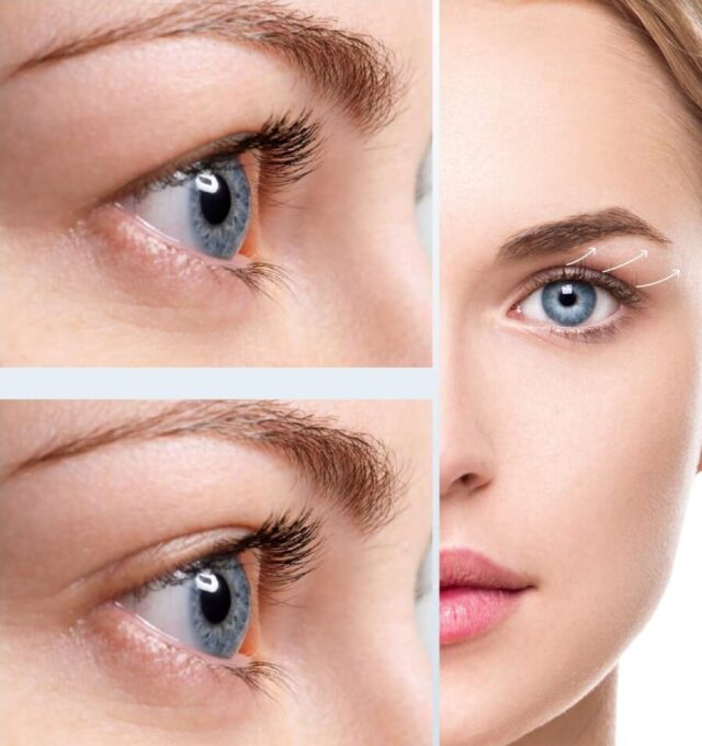 Scale back the Indicators of Ageing With Fibroblasting, dermalfillerbeforeandafter
